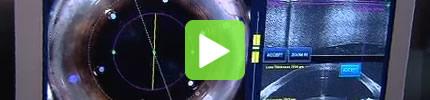 TV Bericht | Premium-Laseroperation des Grauen Stars, RTL Aktuell